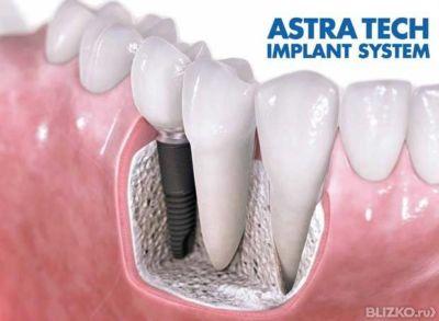 Рф лифтинг и зубные импланты