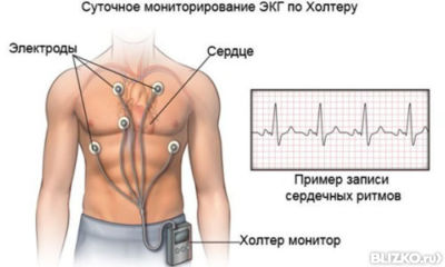 Суточное (Холтеровское) мониторирование ЭКГ (12 отведений) от ...